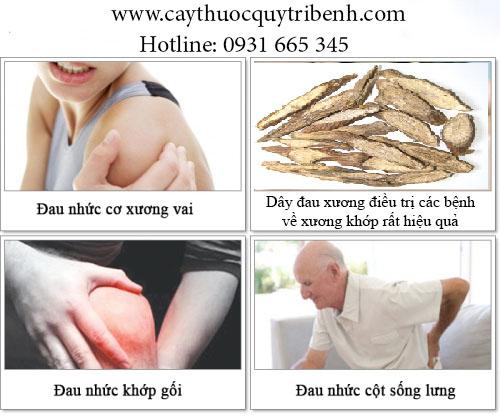 dây đau xương